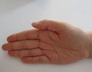 Extrem trockene Hände