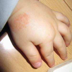 Babys Hautausschlag auf dem Handrücken