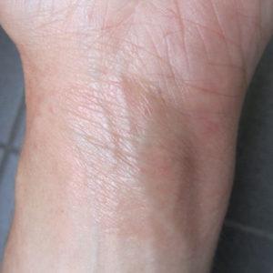 Ekzem nachher: Hautausschlag kurz nach Beginn der Kortison-Therapie