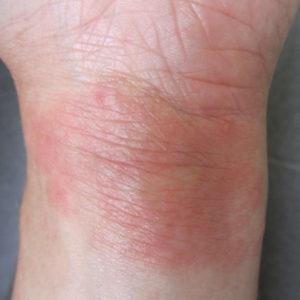 Ekzem vorher: Hautausschlag vor der Kortison-Therapie